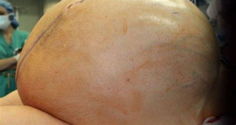132-Pound Tumor Removed From Woman's Abdomen