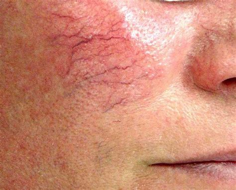 Facial spider veins are dilated veins that appear on the